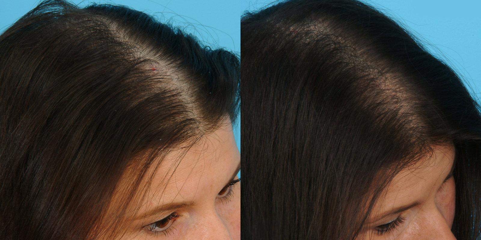 Мезотерапия для волос до и после женщине