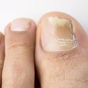 Онихомикоз ногтей схема лечения что это такое